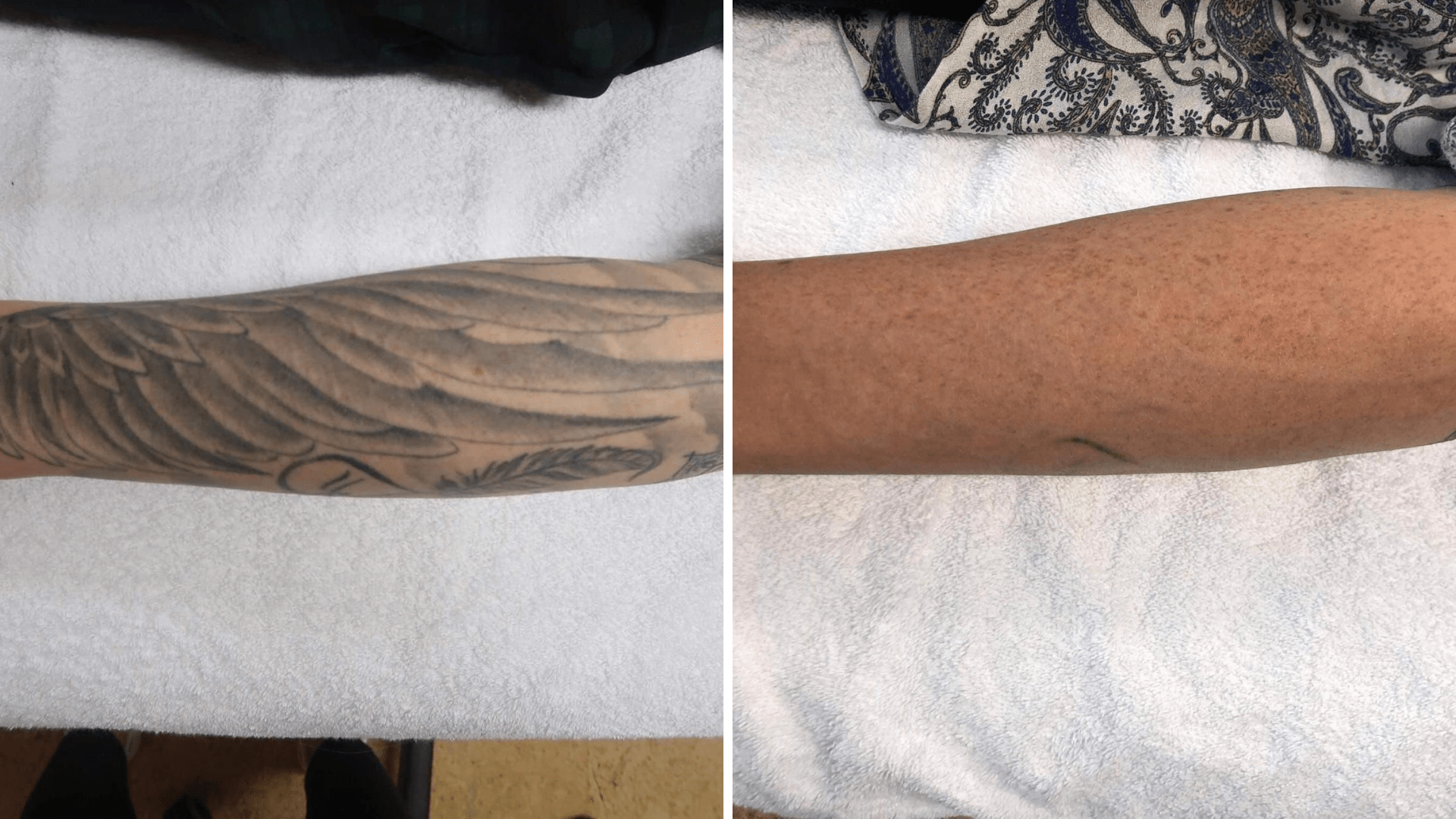 Skincenters tattooverwijdering